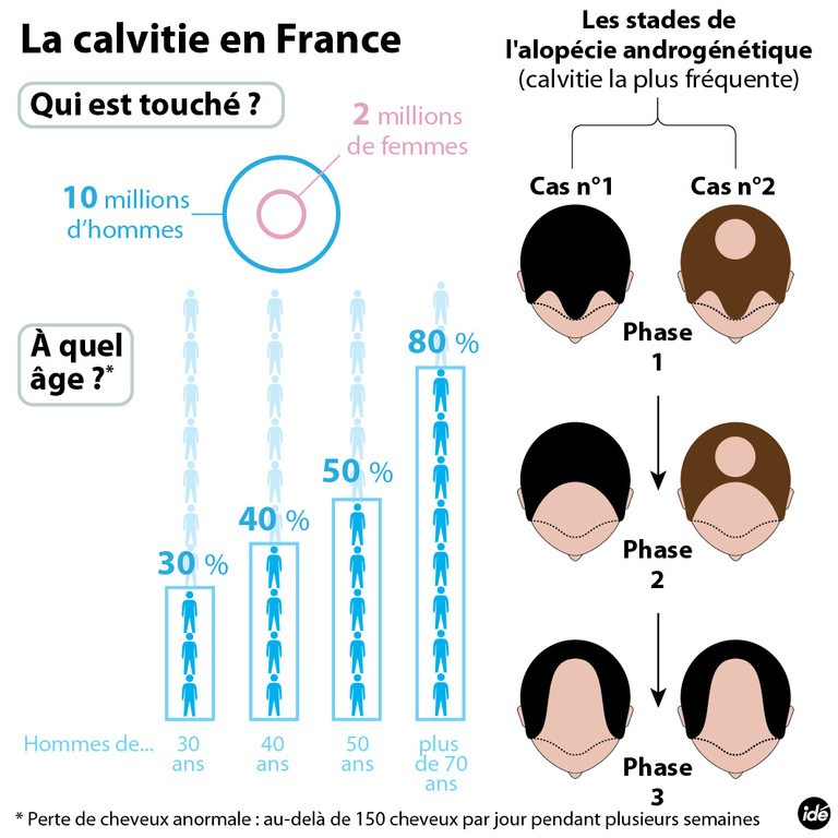 infographie sur la calvitie en france homme femme ge. Black Bedroom Furniture Sets. Home Design Ideas