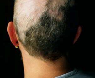 Tout savoir sur la trichotillomanie
