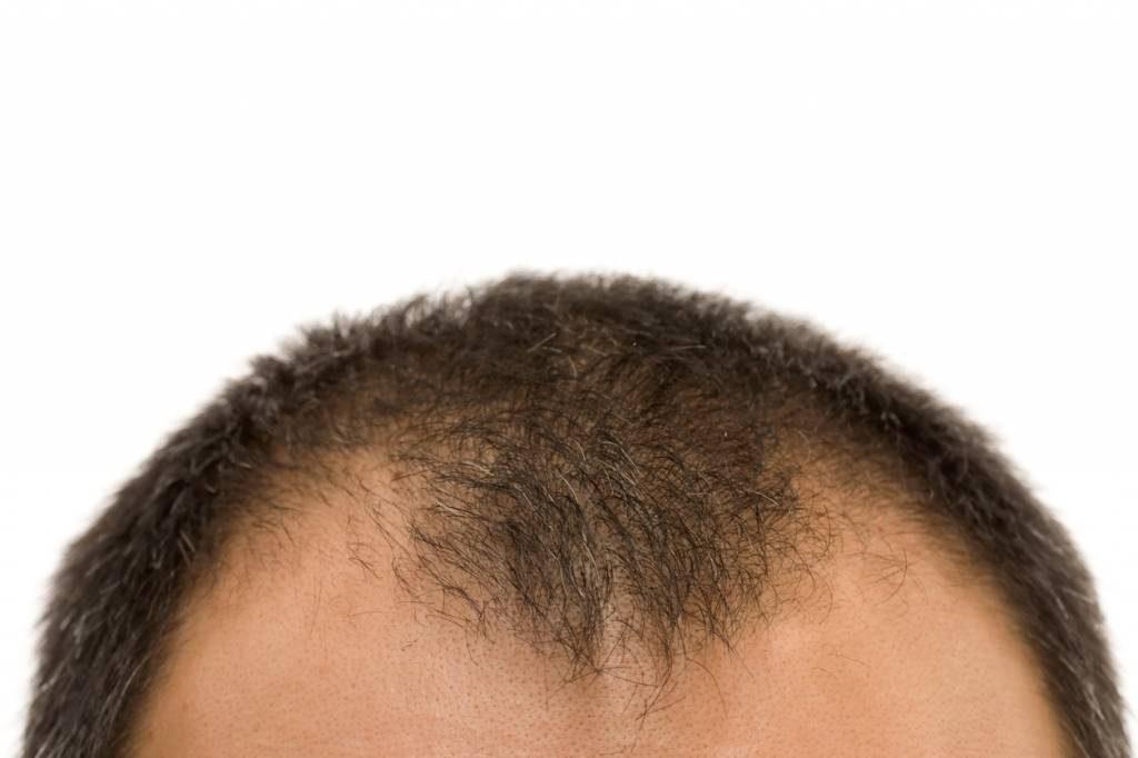 Quelles sont les techniques de greffe de cheveux existantes ?